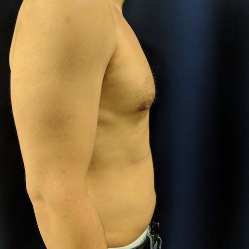 Gynecomastia Gallery - Patient 3820801 - Image 6