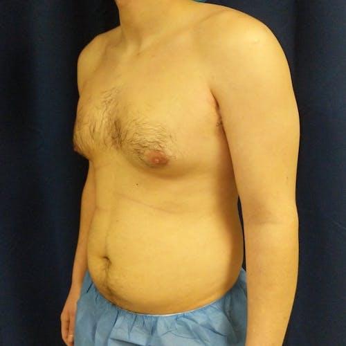 Gynecomastia Gallery - Patient 3820801 - Image 7