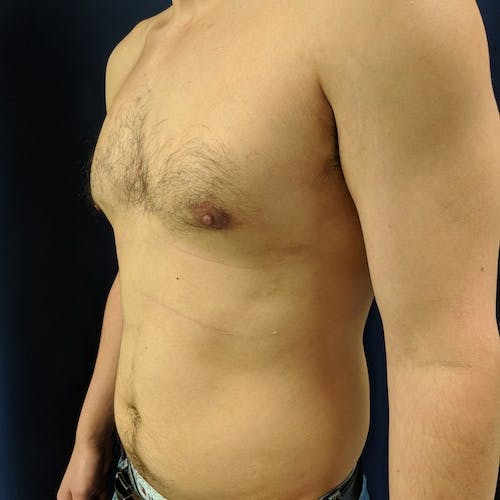 Gynecomastia Gallery - Patient 3820801 - Image 8