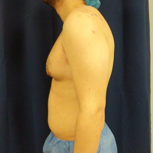 Gynecomastia Gallery - Patient 3820801 - Image 9