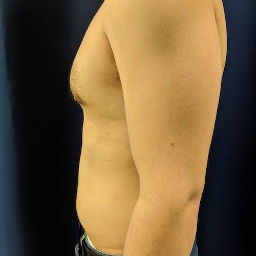 Gynecomastia Gallery - Patient 3820801 - Image 10