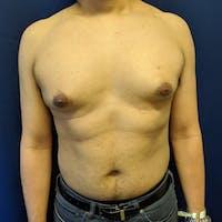 Gynecomastia Gallery - Patient 3820806 - Image 1
