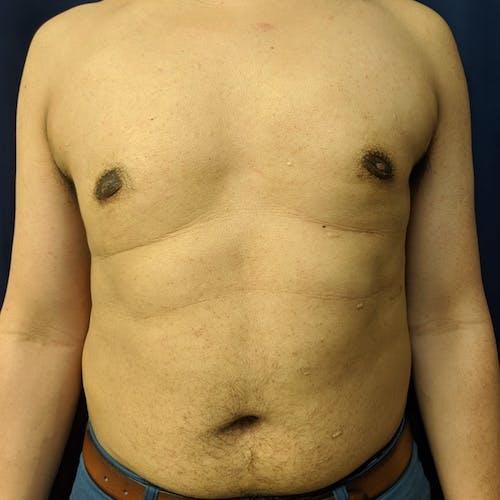 Gynecomastia Gallery - Patient 3820806 - Image 2