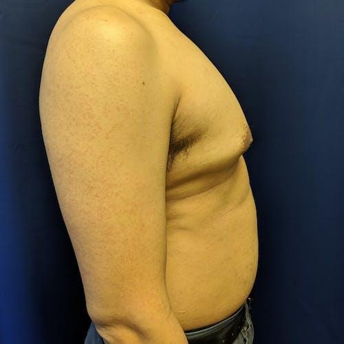 Gynecomastia Gallery - Patient 3820806 - Image 3