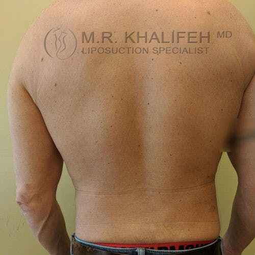 Male Liposuction Gallery - Patient 3821724 - Image 1