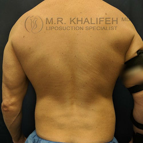 Male Liposuction Gallery - Patient 3821724 - Image 2