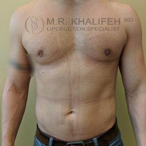 Male Liposuction Gallery - Patient 3821724 - Image 3