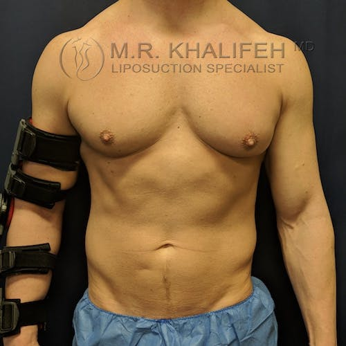 Male Liposuction Gallery - Patient 3821724 - Image 4