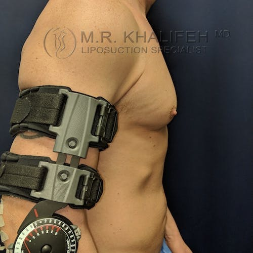 Male Liposuction Gallery - Patient 3821724 - Image 6