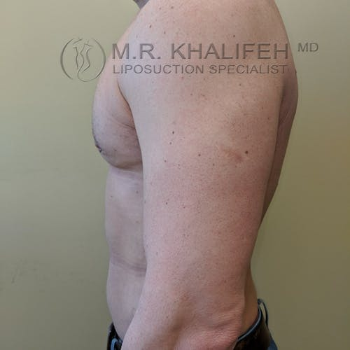 Male Liposuction Gallery - Patient 3821724 - Image 7