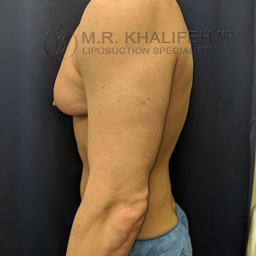 Male Liposuction Gallery - Patient 3821724 - Image 8