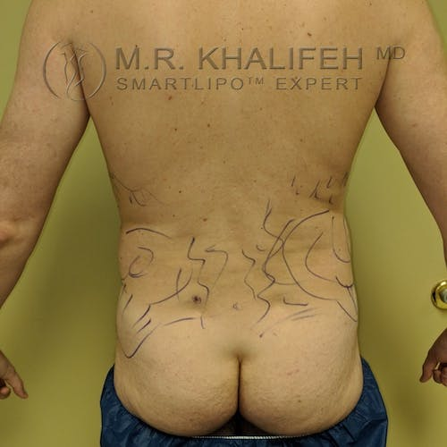 Male Liposuction Gallery - Patient 3821793 - Image 1