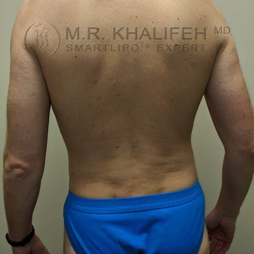 Male Liposuction Gallery - Patient 3821793 - Image 2