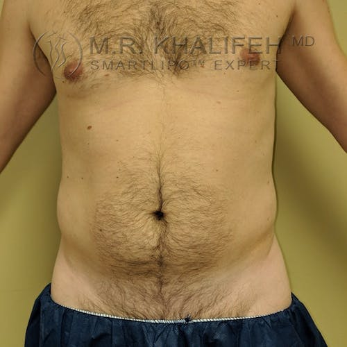 Male Liposuction Gallery - Patient 3821793 - Image 3