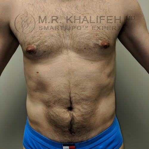 Male Liposuction Gallery - Patient 3821793 - Image 4