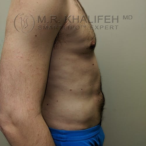 Male Liposuction Gallery - Patient 3821793 - Image 8