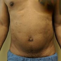 Male Liposuction Gallery - Patient 3821895 - Image 1
