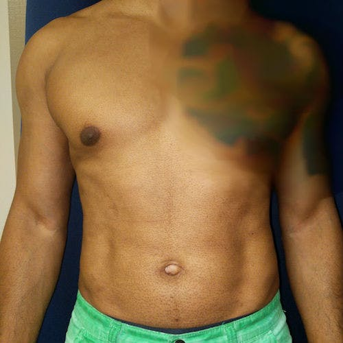 Male Liposuction Gallery - Patient 3821895 - Image 2