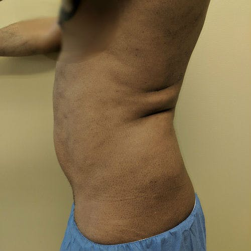 Male Liposuction Gallery - Patient 3821895 - Image 3