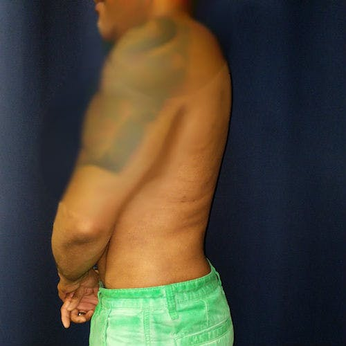 Male Liposuction Gallery - Patient 3821895 - Image 4