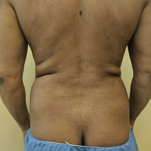 Male Liposuction Gallery - Patient 3821895 - Image 5