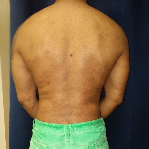 Male Liposuction Gallery - Patient 3821895 - Image 6