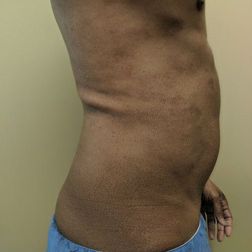 Male Liposuction Gallery - Patient 3821895 - Image 7