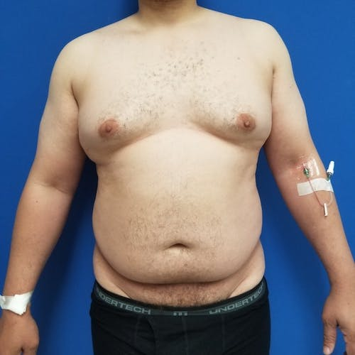 Male Liposuction Gallery - Patient 3821961 - Image 1