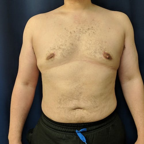 Male Liposuction Gallery - Patient 3821961 - Image 2
