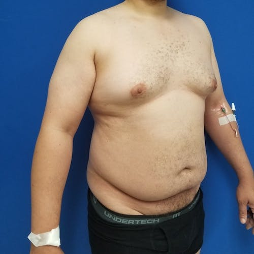 Male Liposuction Gallery - Patient 3821961 - Image 3