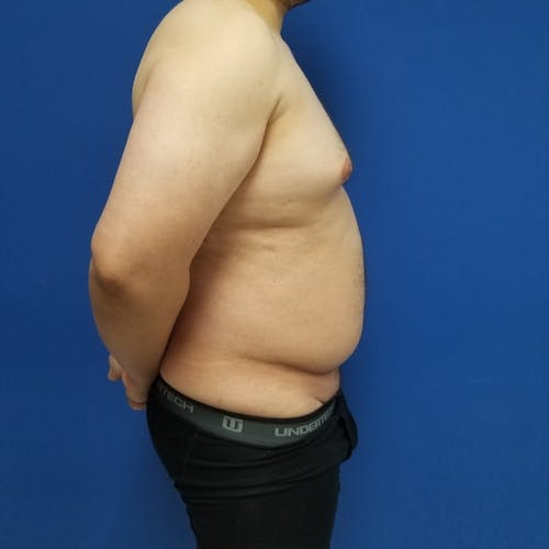 Male Liposuction Gallery - Patient 3821961 - Image 5
