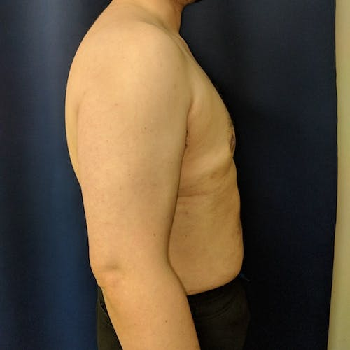 Male Liposuction Gallery - Patient 3821961 - Image 6