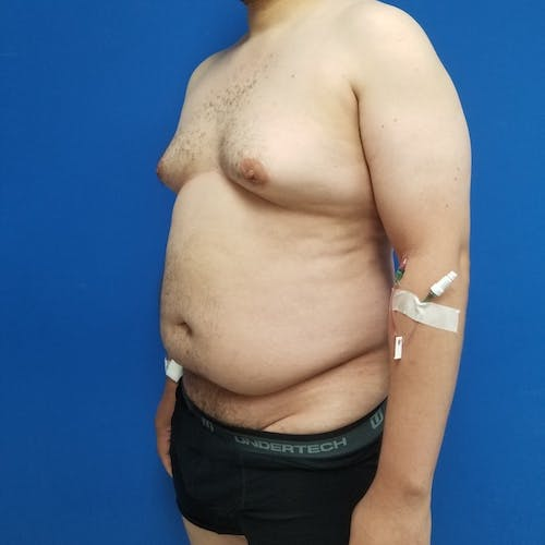 Male Liposuction Gallery - Patient 3821961 - Image 7