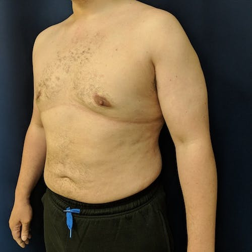 Male Liposuction Gallery - Patient 3821961 - Image 8
