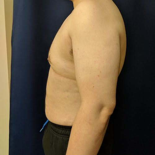 Male Liposuction Gallery - Patient 3821961 - Image 10