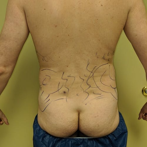 Male Liposuction Gallery - Patient 3821966 - Image 1