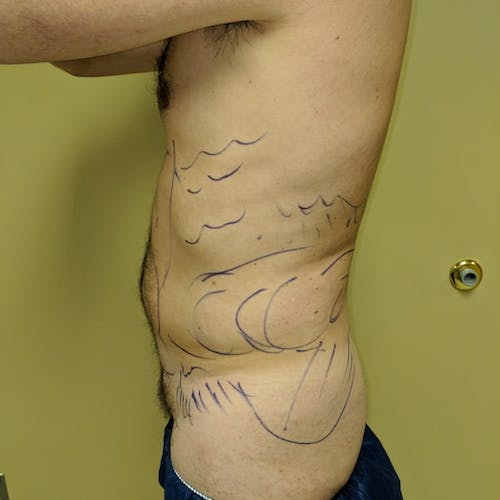 Male Liposuction Gallery - Patient 3821966 - Image 3