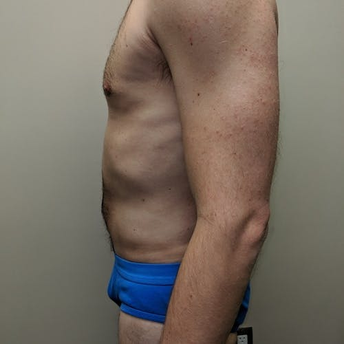 Male Liposuction Gallery - Patient 3821966 - Image 4