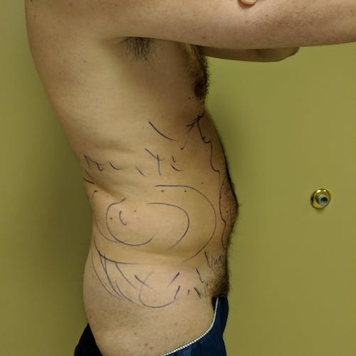 Male Liposuction Gallery - Patient 3821966 - Image 5