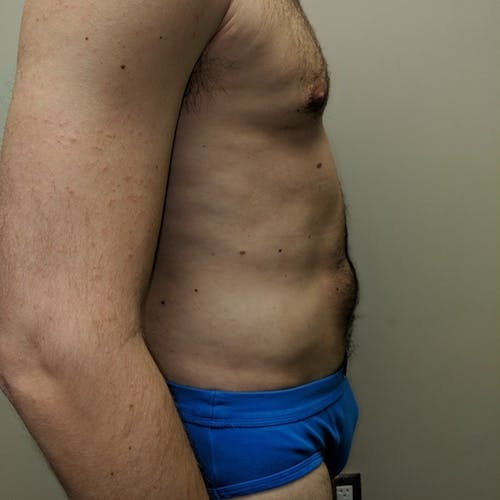 Male Liposuction Gallery - Patient 3821966 - Image 6