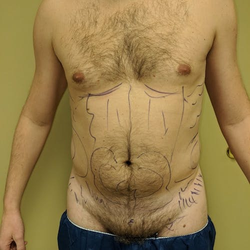 Male Liposuction Gallery - Patient 3821966 - Image 7