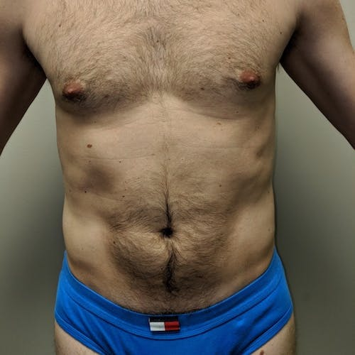 Male Liposuction Gallery - Patient 3821966 - Image 8