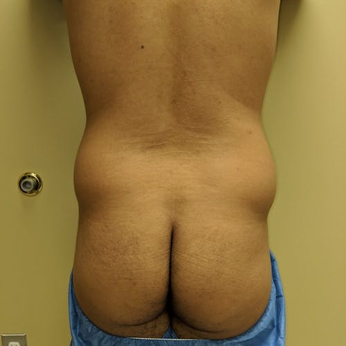 Male Liposuction Gallery - Patient 3821969 - Image 1