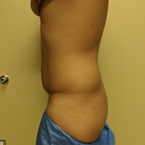 Male Liposuction Gallery - Patient 3821969 - Image 3