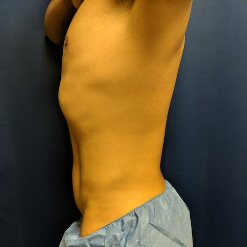 Male Liposuction Gallery - Patient 3821969 - Image 4