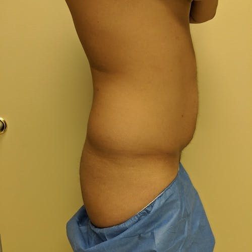 Male Liposuction Gallery - Patient 3821969 - Image 5
