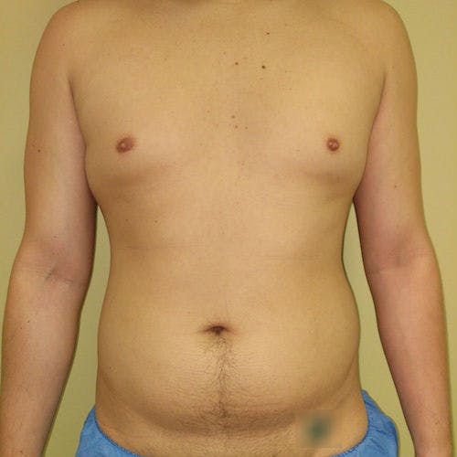 Male Liposuction Gallery - Patient 3821983 - Image 1