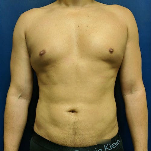 Male Liposuction Gallery - Patient 3821983 - Image 2