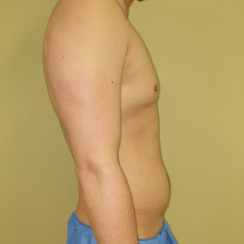 Male Liposuction Gallery - Patient 3821983 - Image 3