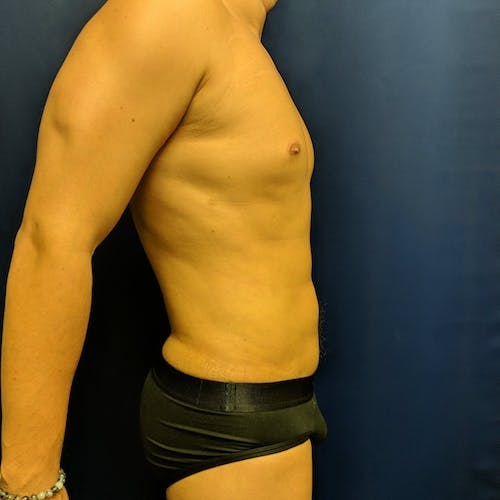 Male Liposuction Gallery - Patient 3821983 - Image 4